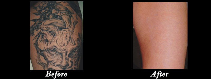 Laser Tatoo Removal - New Creation MediCosmetic Centre